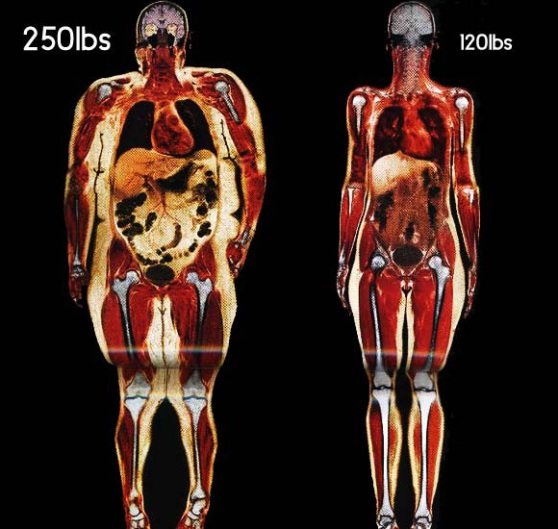Body-Scans-of-two-Women-250lb-vs-120lb